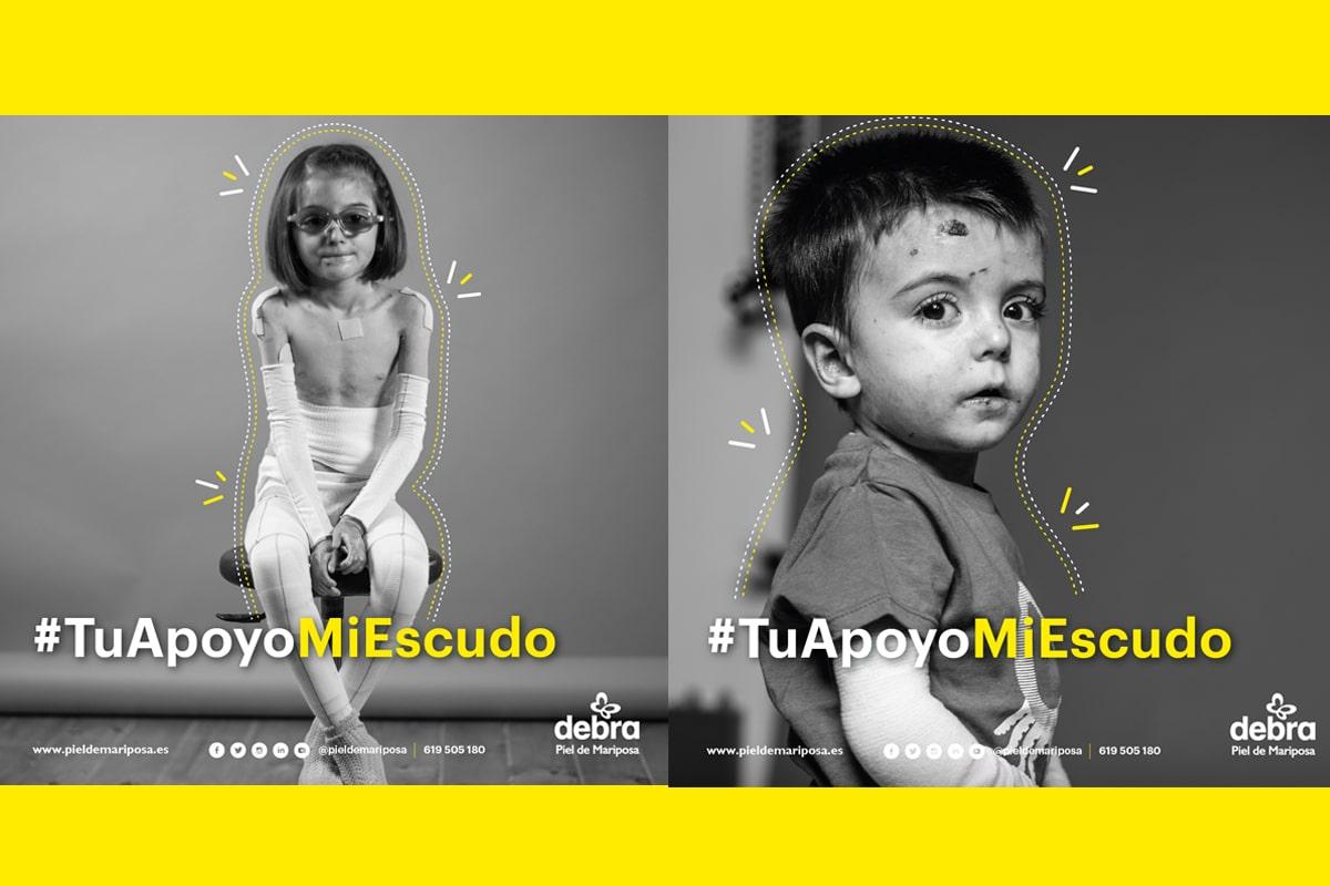 La ONG DEBRA Piel de Mariposa ha lanzado la campaña #TuApoyoMiEscudo
