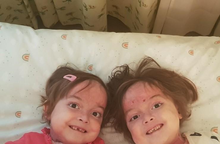 La ONG DEBRA Piel de Mariposa reclama la enfermeria a domicilio a largo plazo